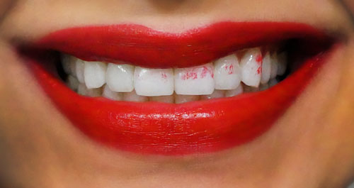 You've got lipstick on yourteeth